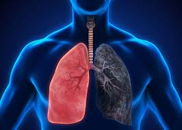 COPD -Chronic Obstructive Pulmonary Disease